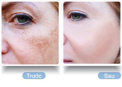 Sakura Transino Collagen - Giải pháp điều trị nám và dưỡng da hiệu quả