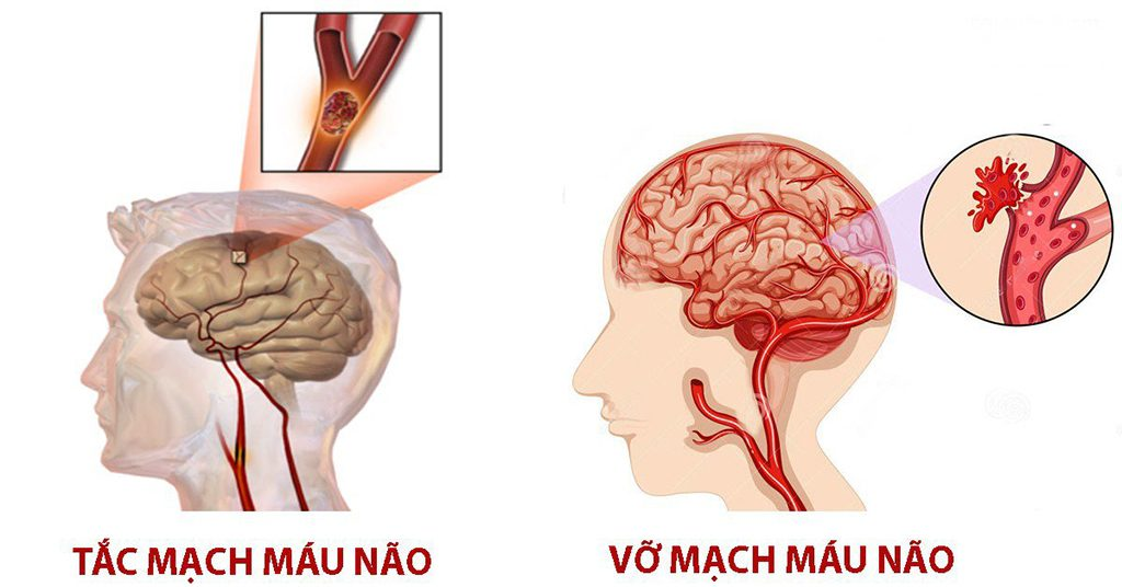 Tắc mạch máu não & vỡ mạch máu não