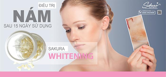 Thổi bay nám với Sakura Whitening